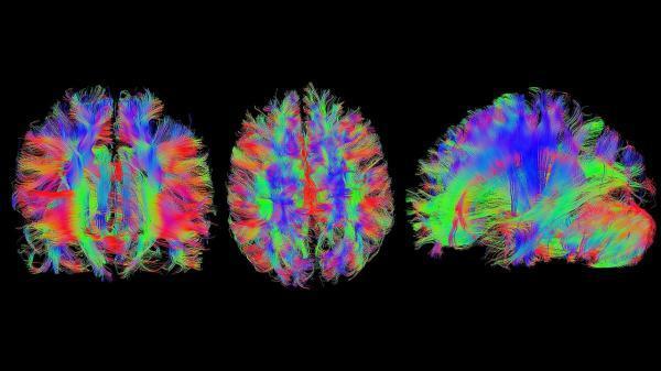طراحی میکروکپسول های برچسب دار با قابلیت مشاهده در تصویربرداری PET