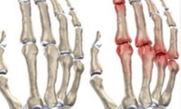 دردهای ناشی از آرتریت را به روش های طبیعی درمان کنید